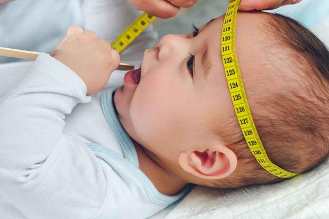 Bebeklerde baş çevresi ölçümü nasıl yapılır